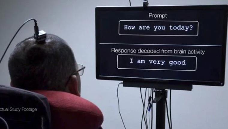 Un implante cerebral permite a un hombre con parálisis convertir sus pensamientos en palabras