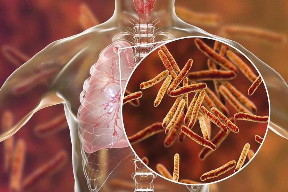 La OMS advirtió que subieron las muertes por tuberculosis